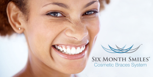 Six Month Smiles at Ancells F\rm Dental Clinic in Fleet Hampshire