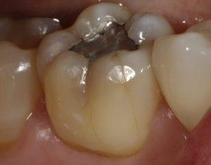 cracked teeth fleet dentist