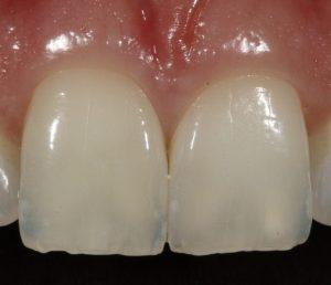 fleet dentist cracked tooth treatment
