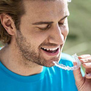invisalign hampshire clear braces