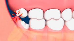 tooth ache advice fleet dentist