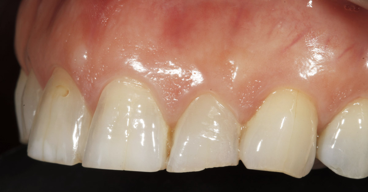 tooth erosion in fleet