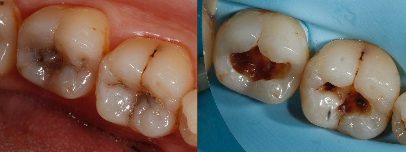 dental fillings in hampshire