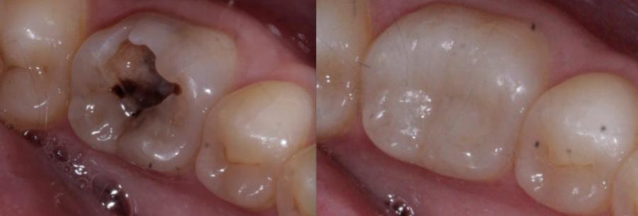 dental fillings in fleet